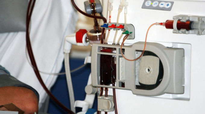 Flow Monitors And Dialysis Machines